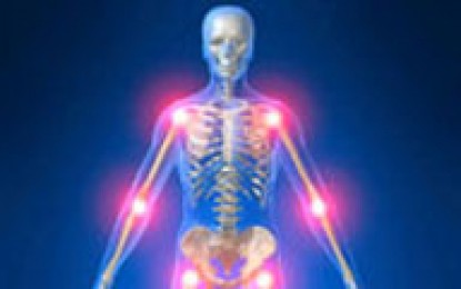 ۱۰ عامل پوکی استخوان